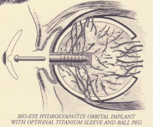 Artificial Eye Movement
