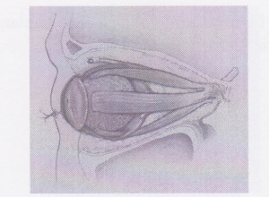 Post Enucleation Diagram - Ocular Prosthetics, Inc.